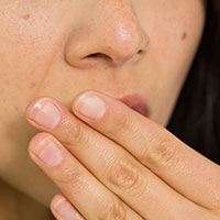 Lemon Balm helps treat cold sores